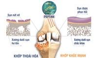 Cách giảm đau nhức xương khớp mùa mưa gió an toàn