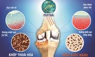 5 cách loại bỏ cơn đau khớp mùa mưa lạnh