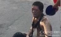 Nổ máy biến áp, người đàn ông gào khóc vì bị cháy toàn thân