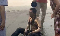 Dội nước đá cứu người bị bỏng, vô tình đẩy nạn nhân thêm nguy kịch