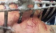 Bồ cào cắm sâu vào vai, nam thanh niên nhập viện trong tình trạng bê bết máu