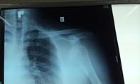 Truy bắt băng dàn cảnh móc túi đánh người nhập viện giữa Sài Gòn
