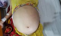 Người phụ nữ vác bụng to như trống vì khối u khủng 12kg trong tử cung