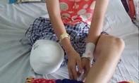 Tạm đình chỉ bác sĩ tắc tránh khiến nữ sinh lớp 10 phải cưa một chân