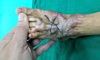 Lấy da bụng tái tạo bàn chân cho bé trai 4 tuổi bị phỏng nặng