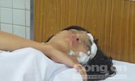 Nữ sinh bị tạt axít khó giữ được đôi mắt