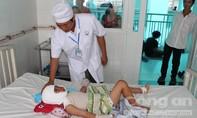 Bắt chước 'làm xiếc' trong đám tang, bé trai 7 tuổi bị bỏng nặng