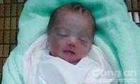 Một bé gái sơ sinh nặng gần 2kg bị bỏ rơi sau bụi chuối