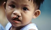 Còn khoảng 10.000 trẻ em bị hở môi, hở hàm ếch cần phẫu thuật