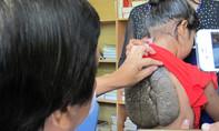 Bé gái 10 tuổi mang 'mai rùa' kỳ lạ trên lưng