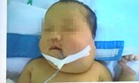 Bé gái 20 ngày tuổi mang bướu quái chứa xương và tóc hiếm gặp