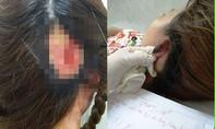 Làm đẹp đón Tết: 2 phụ nữ nhập viện vì hoại tử vành tai, mất da đầu