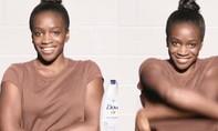 Dove phải xin lỗi vì chiến dịch quảng cáo 'phân biệt chủng tộc' trên Facebook