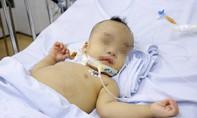 TP.HCM: Bé trai 1 tuổi bị sốc nhiễm trùng, tiên lượng tử vong 99% được cứu sống