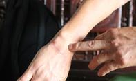 Thanh niên chém đứt gân cổ tay cảnh sát khu vực lãnh án