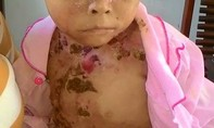Thương cảm bé gái 8 tuổi đau đớn vì bệnh 'hiếm gặp'