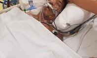 Người đàn ông mất chân vì nhiễm khuẩn lạ