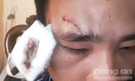 Nổi máu côn đồ giáo viên đánh đồng nghiệp toác đầu