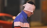 Cận cảnh vụ đánh bom tại nhà thi đấu Manchester khiến hàng chục người thương vong