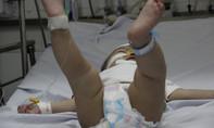 Những sai lầm nguy hiểm của phụ huynh khi xử trí sốt co giật, động kinh cho trẻ