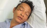 Tìm thân nhân người bị tai nạn giao thông tại Bình Thuận