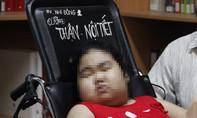 Mắc bệnh hiếm khiến bé gái 11 tuổi có gương mặt tròn như mặt trăng