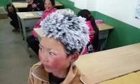 Cậu bé 'mái tóc băng' ở Trung Quốc được hỗ trợ hàng triệu USD