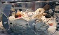 Bé sơ sinh có ruột, dạ dày 'nhầm chỗ' chui lên lồng ngực