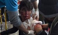 Taliban đánh bom ở Kabul: Đã có 95 người chết