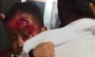 Cha bế con trai 3 tuổi mặt đầy máu đi khắp bệnh viện tìm bác sĩ cấp cứu