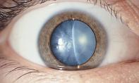 Nguy cơ mù lòa do biến chứng từ bệnh đái tháo đường