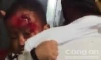 Vụ cha bế con mặt bê bết máu đi tìm bác sĩ: Phê bình kíp trực