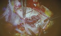 Ổ vi trùng trong răng 'ăn' vào tim khiến người phụ nữ suýt chết