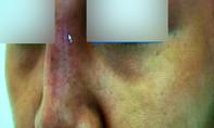 Mắt mũi biến chứng bầm đen sau khi nâng mũi ở spa