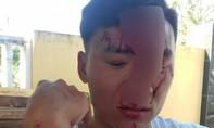 Nhân viên kiểm lâm bị hai phụ nữ đánh gãy mũi khi mua hàng