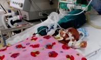 Xin cứu bé trai sinh non mắc bệnh nặng