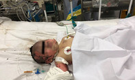 Nổ bình gas mini, mẹ mang thai và bé 15 tháng tuổi bỏng nặng