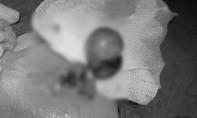Bé trai mất tinh hoàn vì không được phát hiện bệnh sớm