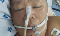 Tìm người thân của bệnh nhân chấn thương sọ não, hôn mê