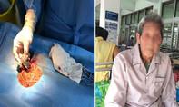 Cụ ông 101 tuổi đi qua cửa tử với chiếc máy tạo nhịp trong tim