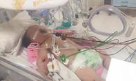 Cứu bé sơ sinh bị ọc máu, hôn mê nguy kịch