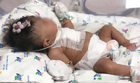 TP.HCM: 8 giờ cứu bé gái sơ sinh mắc 4 dị tật tim phức tạp