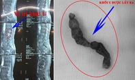 Khối u dài 10cm trong tủy sống khiến người đàn ông bị tê liệt