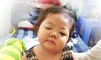 Bé gái 3 tuổi mang bệnh u thân não hiểm nghèo cần giúp đỡ