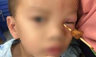 Que xiên thịt cắm vào hốc mắt bé trai 4 tuổi