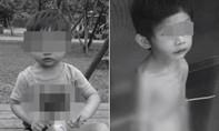 Dư luận phẫn nộ vì cha ruột bỏ đói và hành hạ con trai 3 tuổi