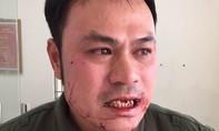 Nhân viên an ninh sân bay Nội Bài bị hành hung, đánh gãy răng