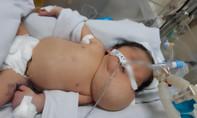 Bác sĩ 2 bệnh viện mổ dị tật hiếm gặp cho thai nhi trước khi chào đời