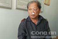 Phóng viên VTV bị côn đồ tới nhà dọa giết, đánh nhập viện