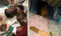 Chồng dùng xăng tự thiêu, vợ lao vào cứu, cả hai bỏng nặng